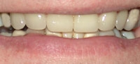 Porcelain Veneers Provided by our Ontario Dentist